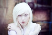 девочка-альбинос