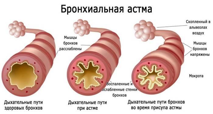дыхательные пути при бронхиальной астме